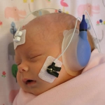 Healthy Hearing baby screening